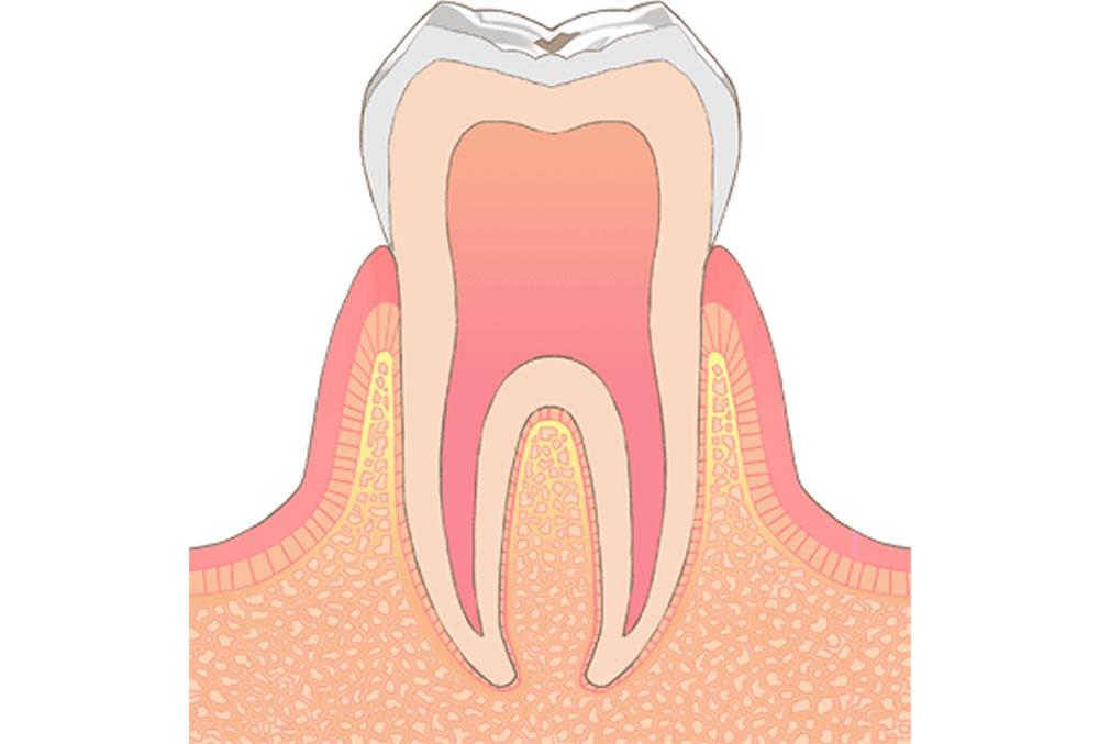 初期症状の虫歯