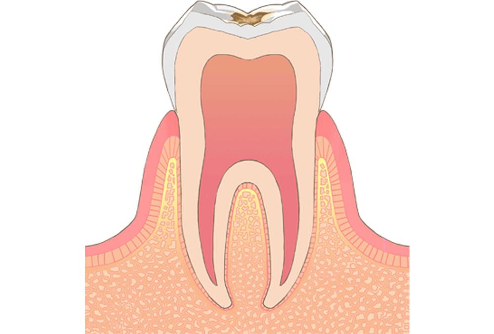 歯の表面(エナメル質)の虫歯