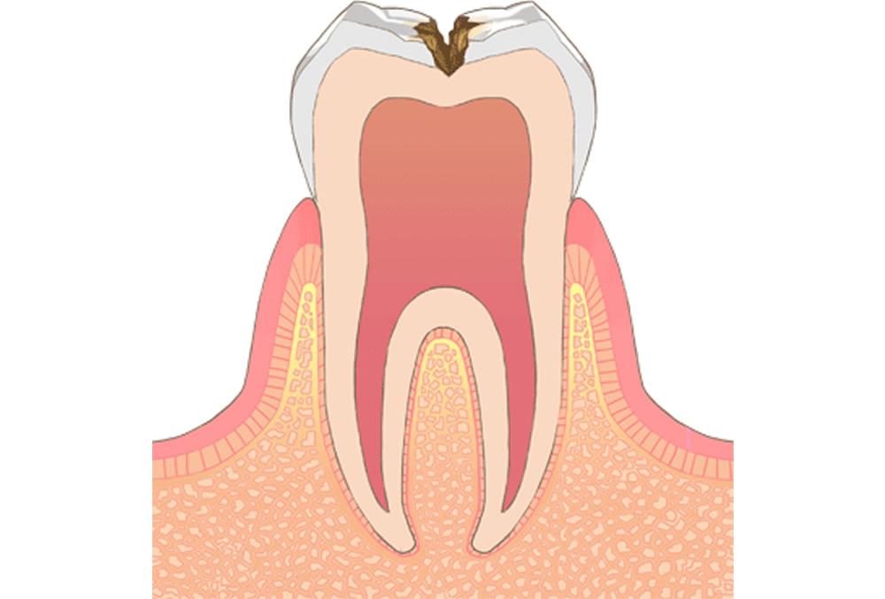 歯の内部(象牙質)の虫歯