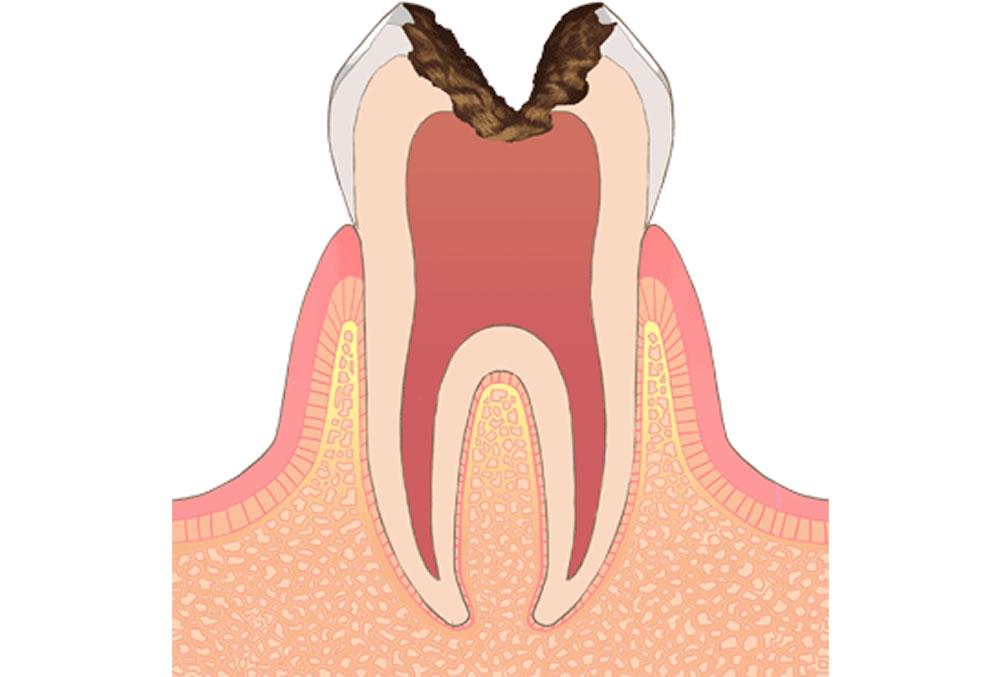 歯の中枢(神経)に達した虫歯