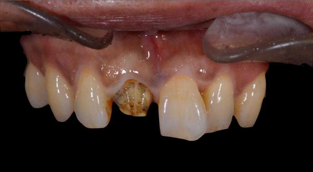 歯周基本治療後、被せものを除去