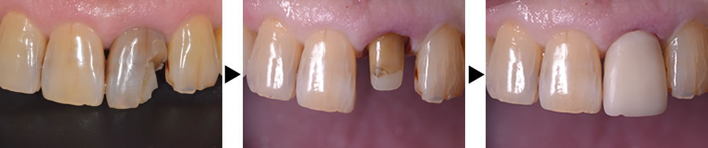 前歯の仮歯装着