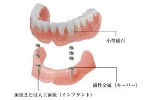 磁性アタッチメント義歯