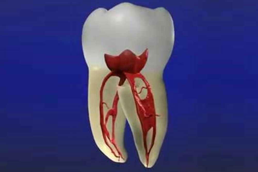 虫歯・歯周病などの治療
