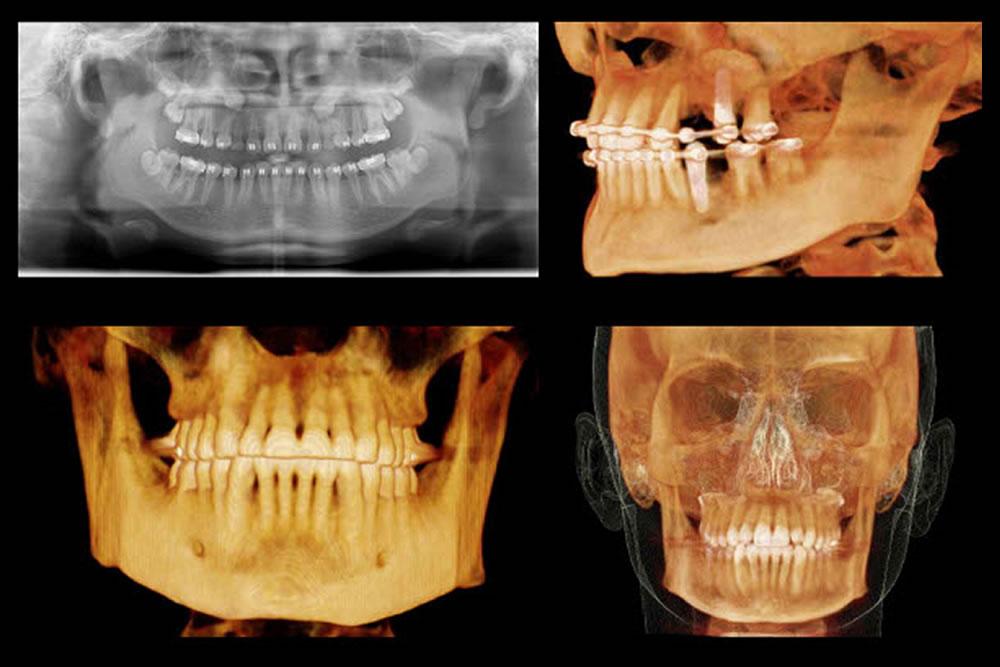 歯科用CTでの精密検査