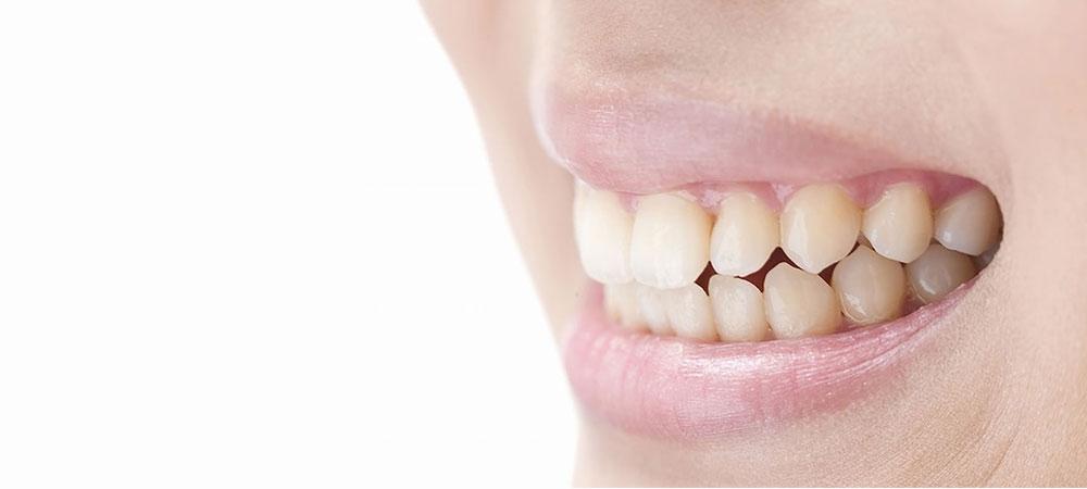 歯肉の審美性