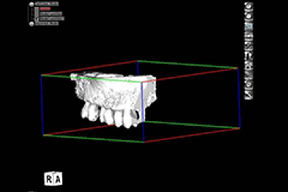 3D顎骨模型制作依頼