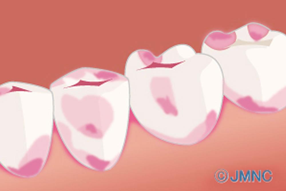 虫歯検知液