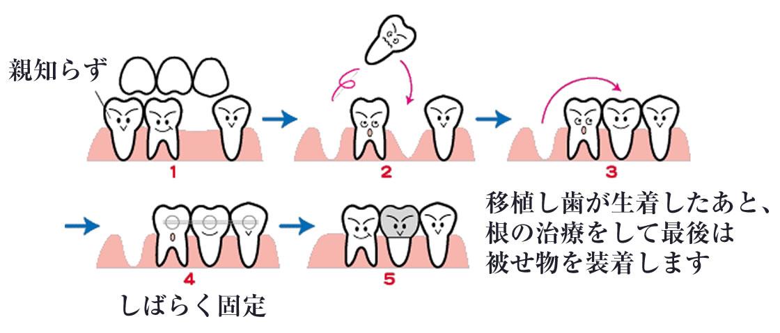 親知らずの移植(歯牙移植)
